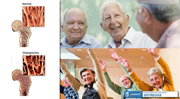 Osteoporosis en la 3ª Edad - Actividades físicas para mayores en el C.D.M. Entrevías