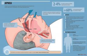 Información sobre la Apnea del sueño - Imagen 01