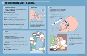 Información sobre la Apnea del sueño - Imagen 02