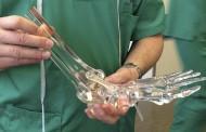 El Hospital Infanta Leonor acoge el implante de un nuevo diseño de prótesis tras fractura de tobillo