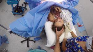 'Piel con piel' entre el bebe y la madre en el quirófano